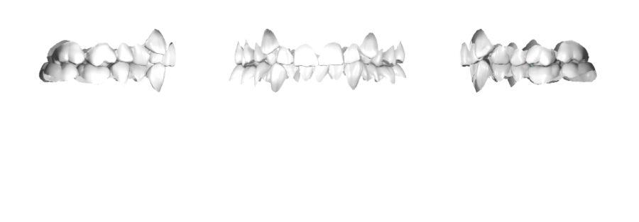 C4W 3D Dental Image PDF3D