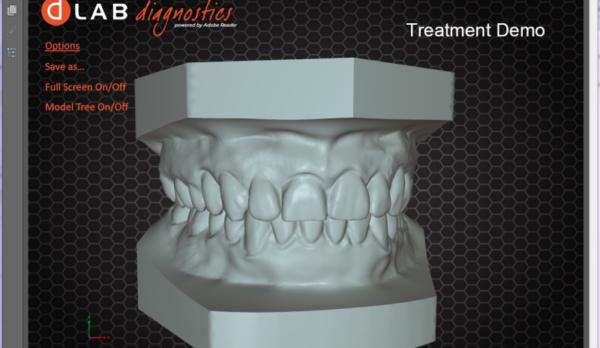 3DxTreatmentDemo-DobsonOrthoLaboratory-800x631