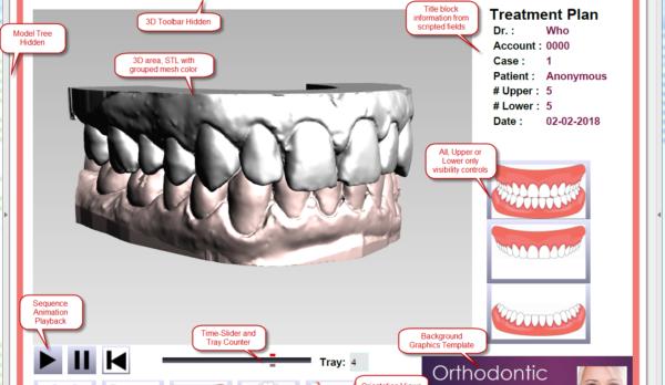 Orthodontic_Tutorial_Screenshot_KeyFeatures_3feb2018